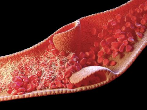 """دراسة تحدد سبب تشكّل جلطات الدم لدى المصابين بـ""""كورونا"""" الشديدة"""